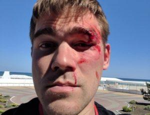 Украинца избил владелец интернет-магазина Stylus после сообщения о покупке ворованного Kindle